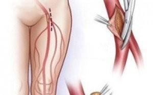 Судинна хірургія: методика радіочастотної абляція (VNUS)