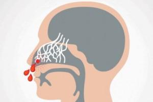 Як допомогти при носовій кровотечі?