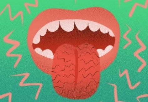 Сухість у роті - що робити?